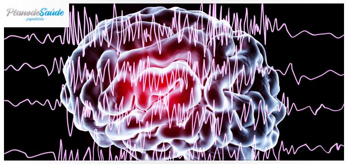 Representação 3D de ondas cerebrais alteradas - crise epiléptica