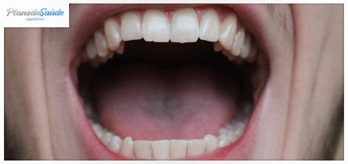 Homem com boca aberta - amígdalas