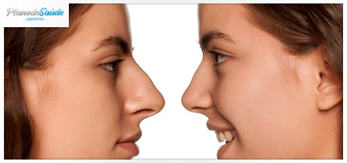 Mulher de perfil olhando o antes e depois da rinoplastia